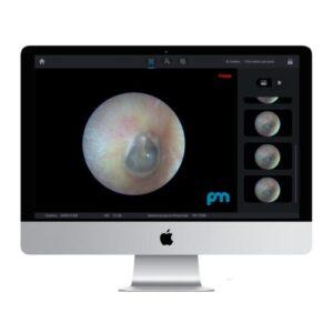 Endoskopkamera MAC