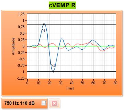 eVEMP_Software_3_pm